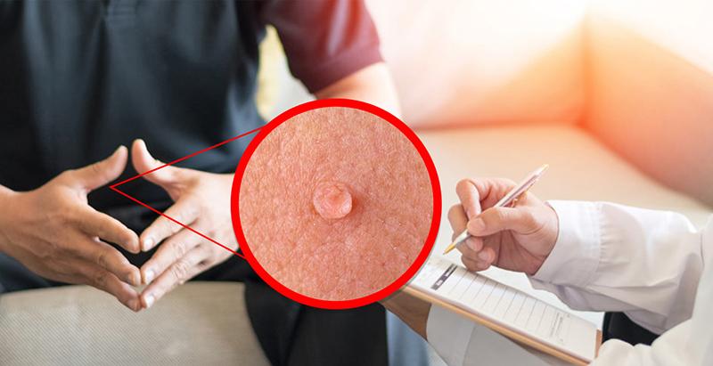 Mụn cóc sinh dục: Dấu hiệu, cách điều trị và phòng tránh hiệu quả | Medlatec